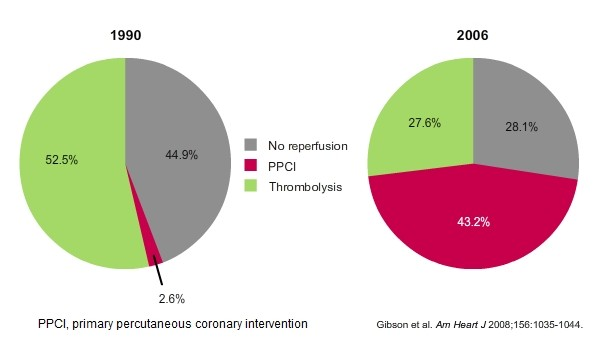 NRMI  Trends  in  reperfusion  for  reperfusion  eligible  STEMI  patients  1990  to  2006  Pie diagram showing increase in the number of STEMI patients receiving reperfusion therapy and a remarkable preference for PPCI as the choice of therapy over fibrinolysis