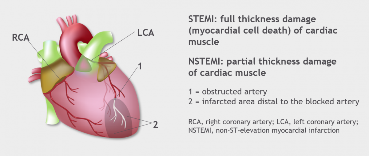 Heart structure Heart diagram showing blocked artery and affected area