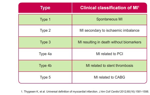 Overview of the clinical classification of MI based on clinical findings