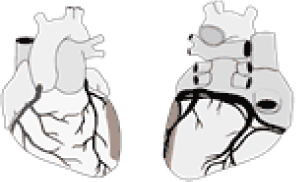 Inferior myocardial infarction: Diagram depicting localization of inferior myocardial infarction