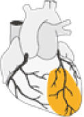 Lateral myocardial infarction: Diagram depicting localization of lateral myocardial infarction