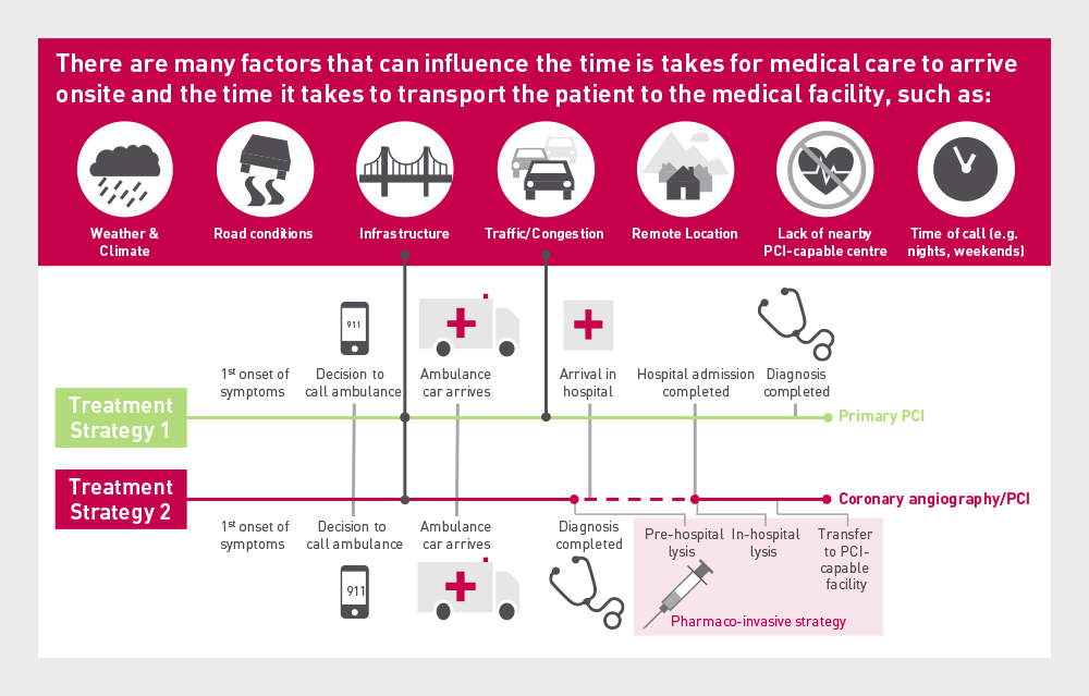 Graphic showing various non patient related factors influencing timely reperfusion