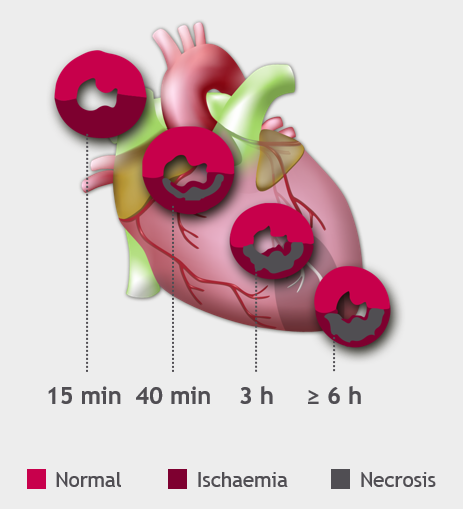 The course of myocardial ischaemia